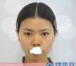 深圳博爱医院综合隆鼻+取颊脂垫+隆下颏手术 让我摆脱大众脸
