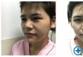 好友陪我找上海百达丽原九院医生别筝医生做了鼻综合隆鼻手术