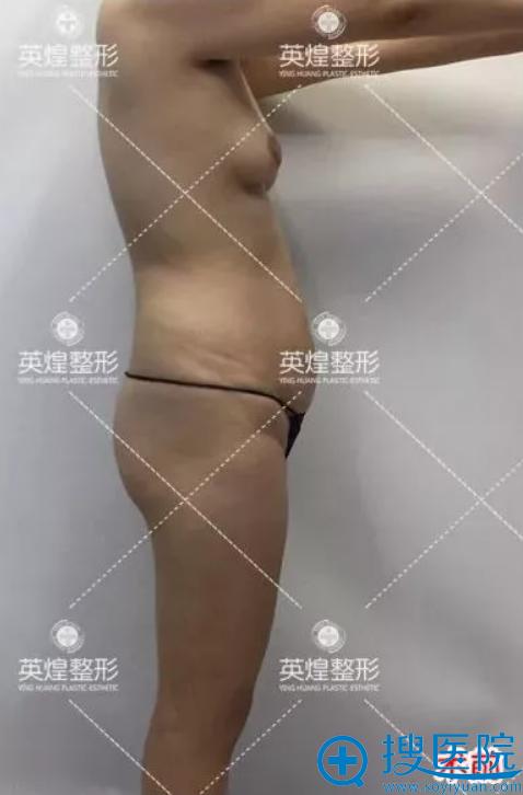 产后下垂的胸部和腰腹部赘肉