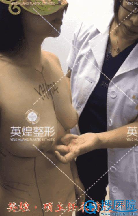英煌项力源自体脂肪隆胸手术方案设计