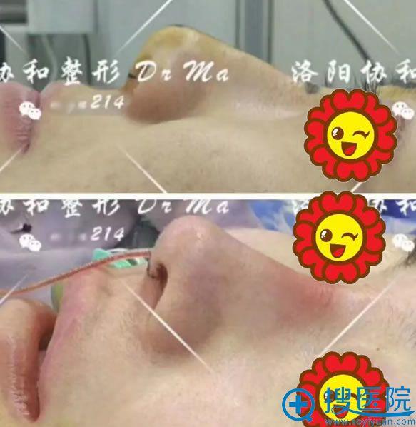 洛阳协和整形鼻综合手术即刻效果