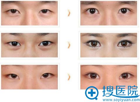 韩国清潭第一整形医院成镇模做的双眼皮案例