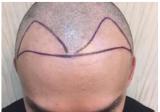 看上海华山医院脱发植发专科徐峰给我做的发际线种植效果怎么样