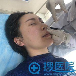 北京当代刘卓注射玻尿酸过程