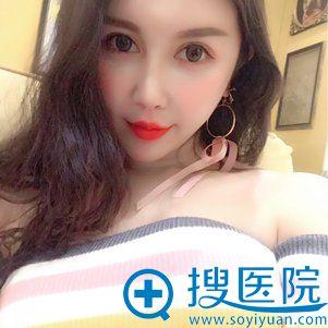 北京当代玻尿酸填充鼻唇沟案例