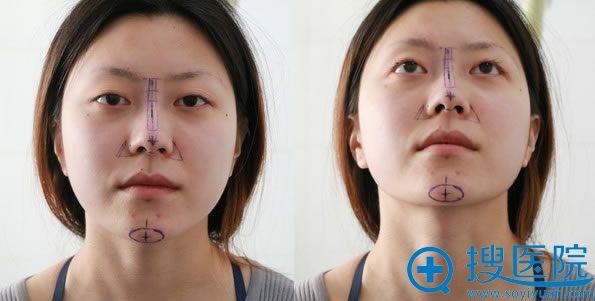 金燕子马铁安院长设计的鼻综合手术方案