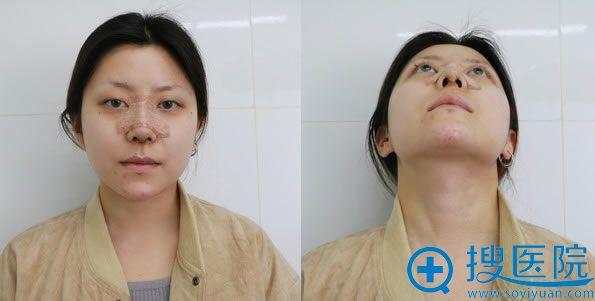 做隆鼻手术第3天恢复效果图