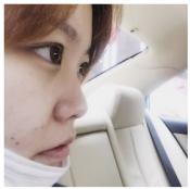 去上海天大隆鼻前先来看看我找刘先超做的鼻综合效果怎么样吧