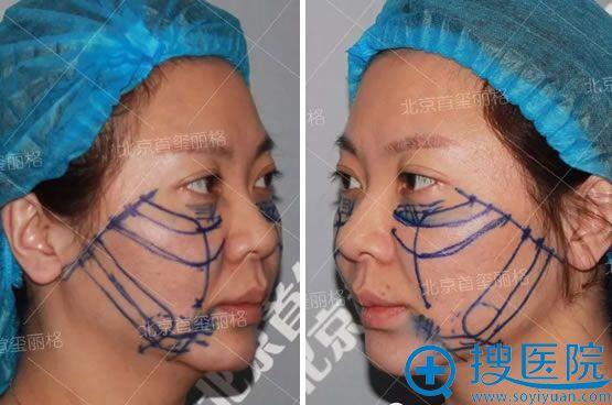 面部线雕手术方案细节图