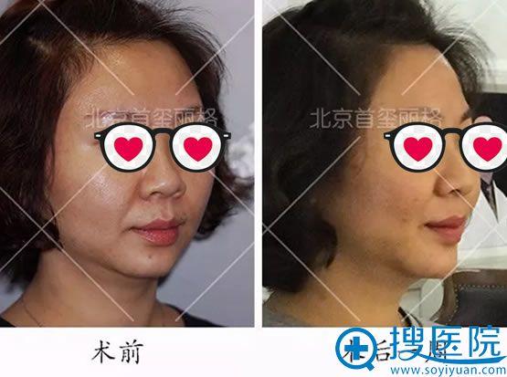 面部线雕手术一周前后效果对比图