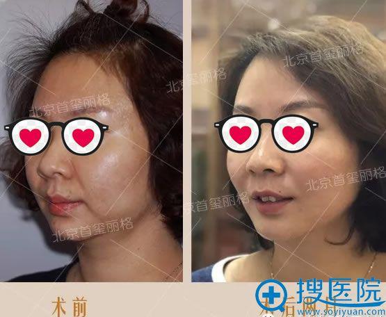 北京首玺丽格韩用线雕案例2个月效果