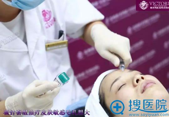 维多利亚微针治疗敏感肌过程