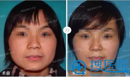 超音针V脸术后2年效果展示