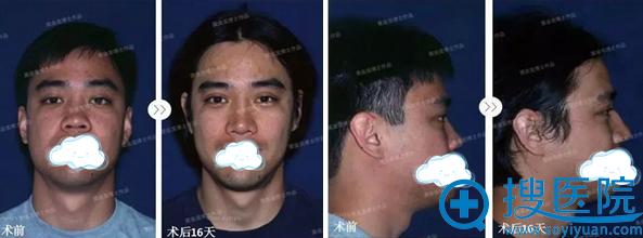 黄金龙隆鼻手术前后对比照片