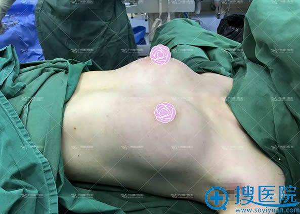 月亮女神假体隆胸手术过程