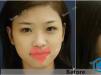 长得这么可爱的小仙女竟然还在西安艺星整形医院做了隆鼻手术?