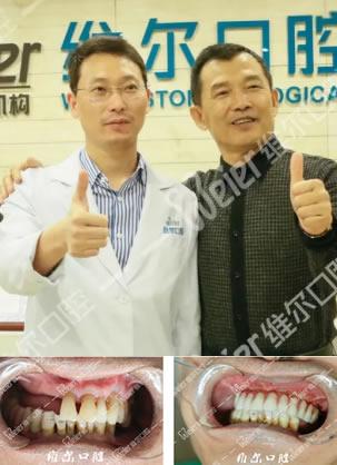 北京维尔口腔医院汪廷乐种植牙案例 缺牙10年王叔叔重生满口牙