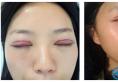 看了韩盛斌做的双眼皮案例就知道贵阳华美谁割双眼皮好看了