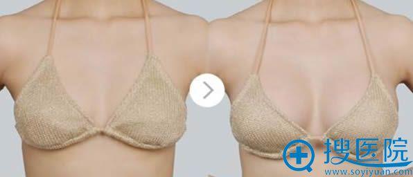 沈阳202医院整形科自体脂肪隆胸案例
