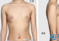 深圳同仁整形医院陈群院长圆形假体隆胸手术全过程分享