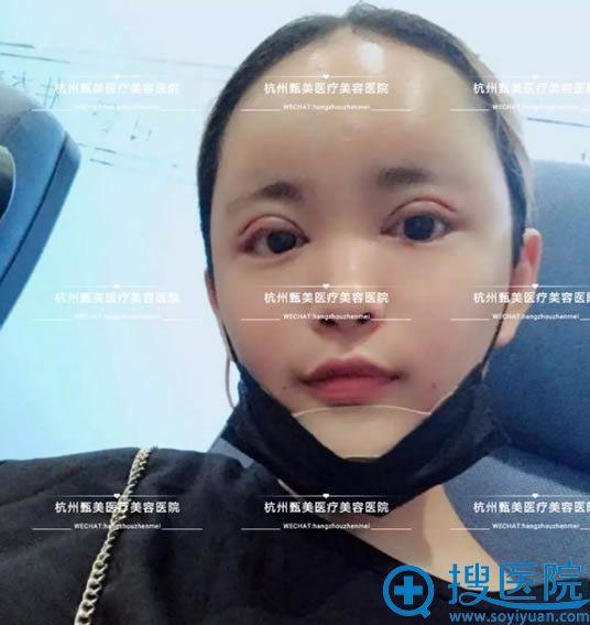 杭州甄美假体丰下巴手术即刻效果