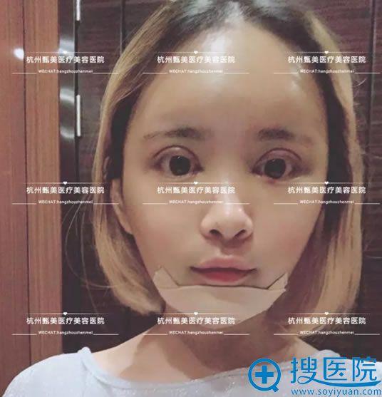 选择杭州甄美做假体垫下巴和双眼皮手术第3天
