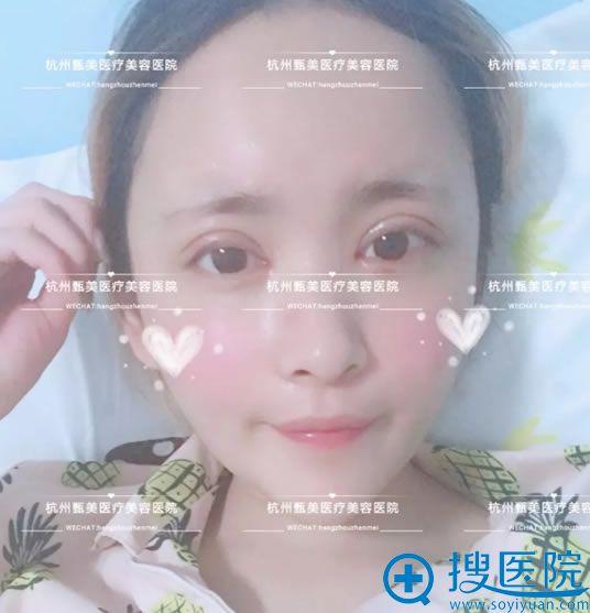 杭州甄美黄庆武自体脂肪填充案例第7天效果