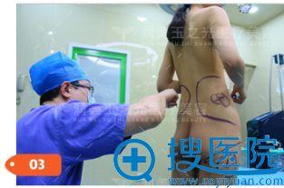抽脂手术方案设计过程
