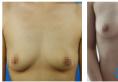 终于找济南海峡林沸腾做了期待已久的沸腾沟假体隆胸手术