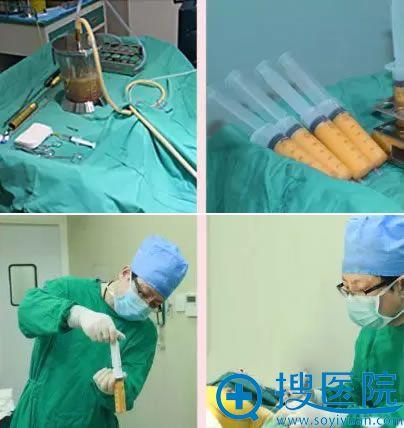北京润美玉之光吸脂和隆胸过程图