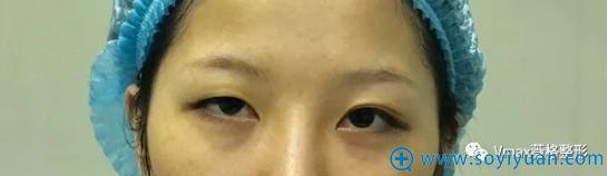 厦门薇格割双眼皮术前照