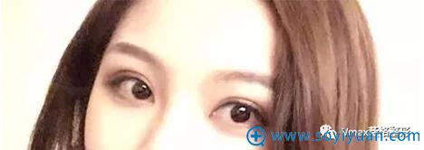 厦门薇格双眼皮手术45天恢复效果