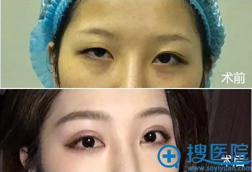 厦门薇格双眼皮手术前后对比照片