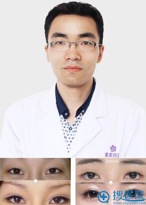 南昌莱美覃耀峰及双眼皮修复案例