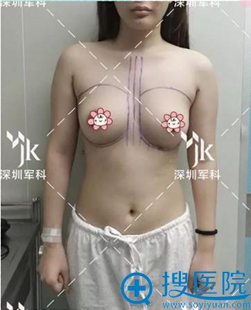术前胸部不够饱满,形态不满意