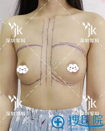 术前胸小,想要更饱满的胸部