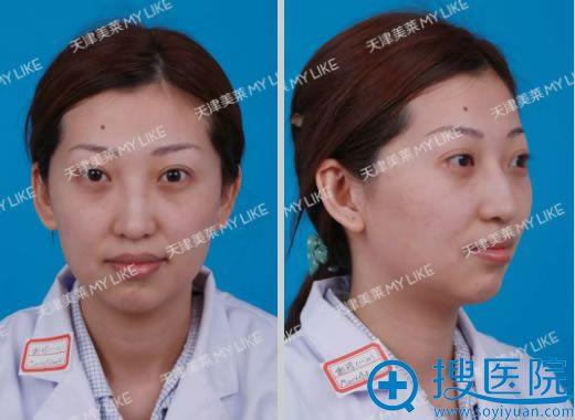 做鼻修复手术前的显假高鼻梁