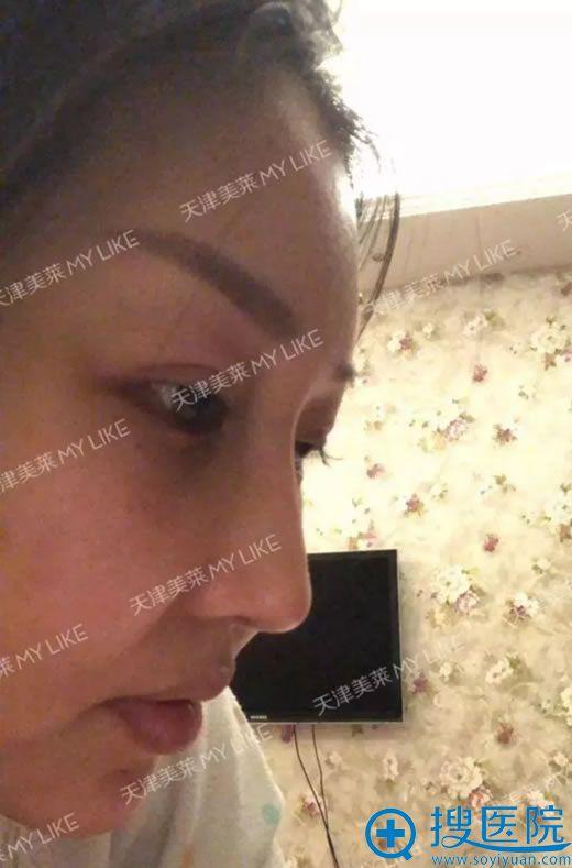 李战强鼻修复案例手术当天图片