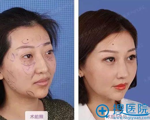 天津美莱鼻修复员工案例效果对比图
