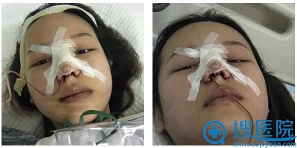 这是上海九院肖开颜医生隆鼻第一天的图