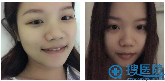 去上海九院隆鼻前的照片