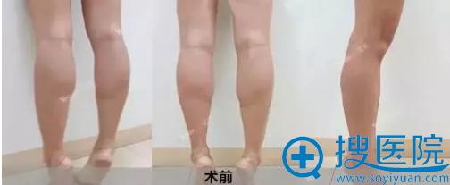 肌肉明显的国足小腿