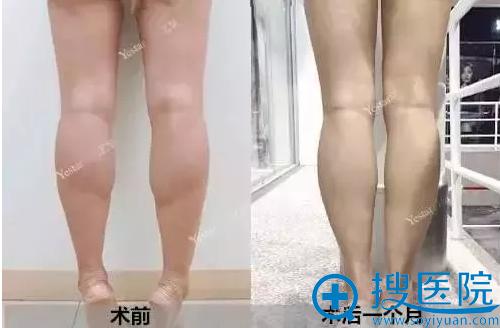 昆明艺星瘦腿针一个月效果对比