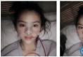 自信分享上海九院张盈帆医生半肋软骨隆鼻案例给大家