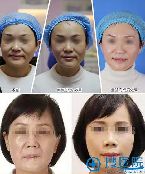 吉志俊教授面部线雕真人案例