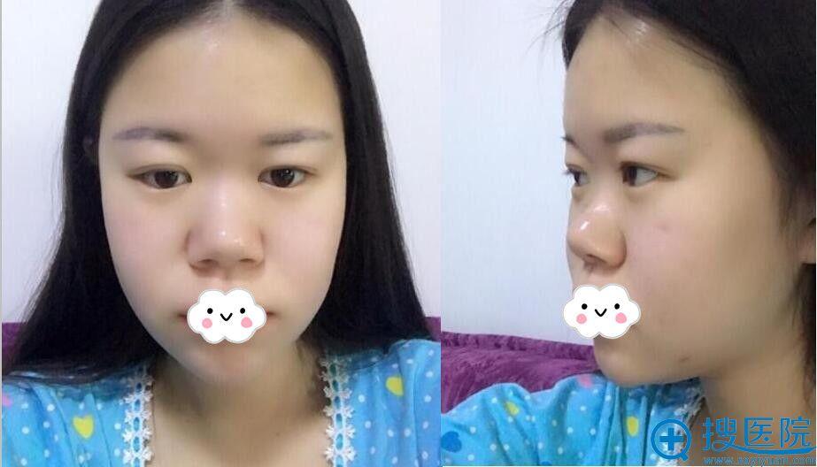 隆鼻术前的我鼻梁塌陷