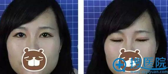 湘雅医院龙剑虹6mm双眼皮案例