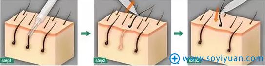武汉大学中南医院整形科睫毛种植流程