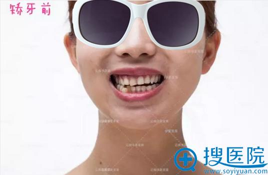 牙齿隐形矫正术前照片
