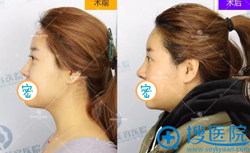 王兴奎综合隆鼻隆鼻修复术后对比